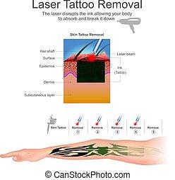 remove2, laser, tatouage