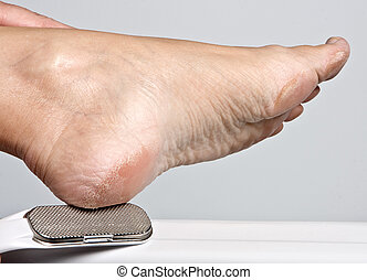 Hand removing callous from a dry foot