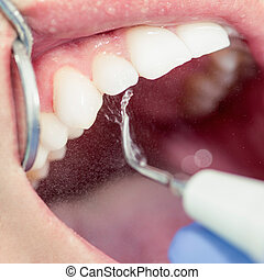Removing dental plaque for perfectly white teeth, detailed ...