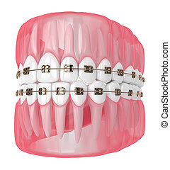 render, 3d, mandíbula, dientes, fierros de orthodontic