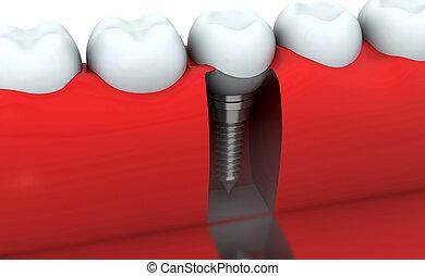 render, dental, zahn, menschliche , implantat, 3d
