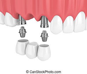 render, implants, dentaal, 3d, bovenleer, kaak, brug