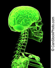 rentgen, hlavička, s, mozek