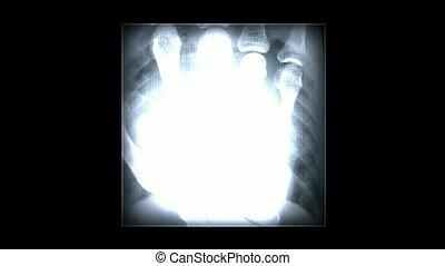 rentgenowski, abstrakcyjny, skeleton., film, pal., tło., ludzki