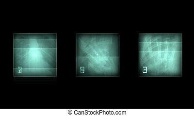 rentgenowski, abstrakcyjny, skeleton., film, pal., tło., ...