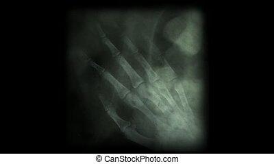 rentgenowski, abstrakcyjny, szkielet, palec, film, bone., tło., ludzki