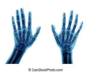 rentgenowski, ręka