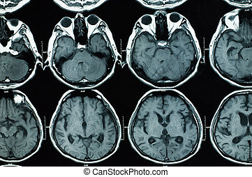 research in medicine. CT scan