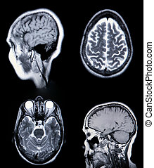 resonancia, crt, cerebro, grano, visible, (magnetic, alto, ...