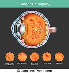 retina, rendellenesség, ábra, retinopathy., tünetek, cukorbeteg