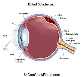 retinal, odłączenie, eps8