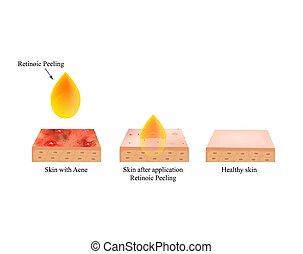 retinoic, purulent., acne., acné, vecteur, illustration,...