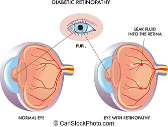 retinopathy, 糖尿病患者