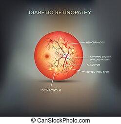 retinopathy, cukorbeteg, háttér