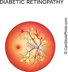 retinopathy, diabétique