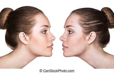 retrato, comparación, problemático, piel