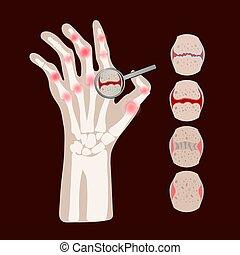 reumatóide, educação, medicina, vetorial, esquema, artrite, ...