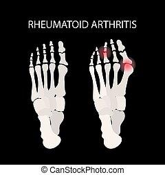 reumatóide, perna, educação, medicina, vetorial, esquema, ...