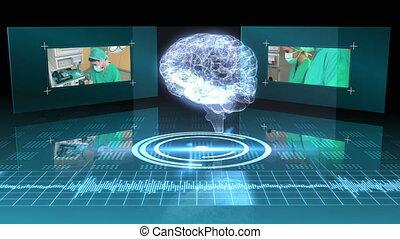 Revolving brain graphic