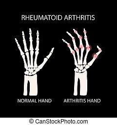 RHEUMATOID ARTHRITIS BLACK Medicine Education Vector Scheme...