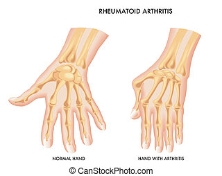 Rheumatoid Arthritis - medical illustration of the effects...