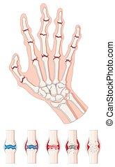 Rheumatoid arthritis diagram on white