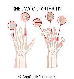 RHEUMATOID ARTHRITIS DISEASE Medicine Education Vector ...