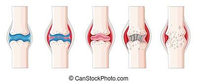Rheumatoid arthritis in human body illustration