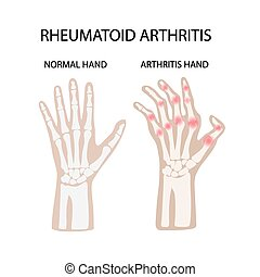 RHEUMATOID ARTHRITIS WHITE Medicine Education Vector Scheme...