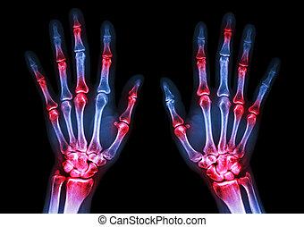 rheumatoid), manos, coyuntura, ambos, radiografía, múltiplo...
