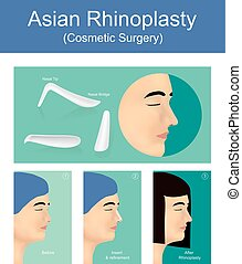 Rhinoplasty is a plastic surgery creates a aesthetic and...