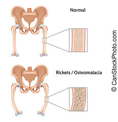 Rickets and Osteomalacia, eps10 - Vitamine D deficiency bone...