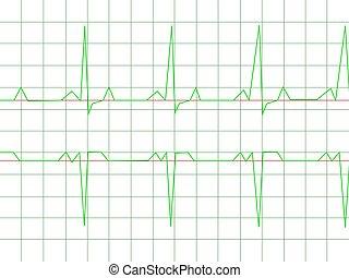 ritmo de corazón, normal