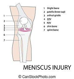rodilla, lesión, menisco
