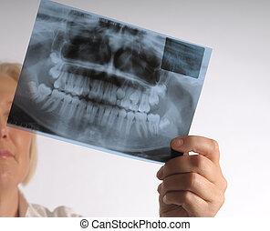 roentgen of teeth