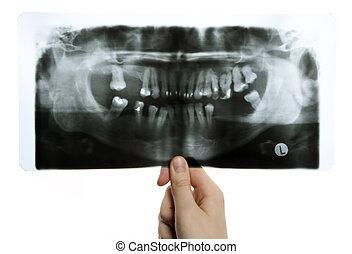 Roentgen photo of teeth