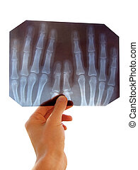 roentgenogram (X-ray) - doctor inspects the radiograph of ...