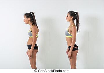 rolamento, mulher, defeito, scoliosis, ideal, posição,...