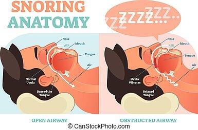 roncar, anatomia, médico, vetorial, diagrama, com, ar,...