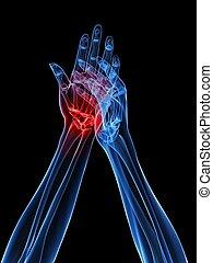 rontgen, handen, -, artritis
