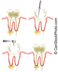 Root canal procedure - Illustration showing a root canal...