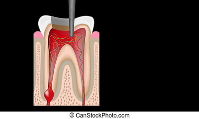 Root canal procedure - Simulation of Root canal procedure