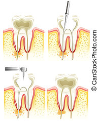 Root canal process - Illustration of the dental root canal ...