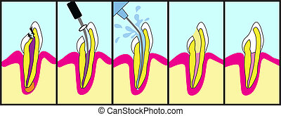 Root Canal Treatment - Dental root canal treatment...