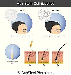 root., plaquette, (prp), penetrates, il, cheveux, infographic, croissance, injecter, cuir chevelu, utilisation, santé, care., riche, sur, jusqu'à ce que, stimuler, plasma