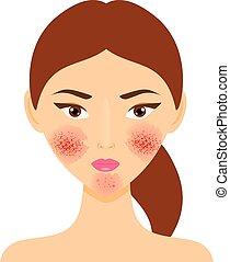 rosacea, kvinde, illustration, problem., vektor, hud