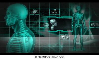 rotation, partie, quoique, squelette, autour de