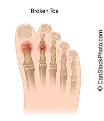 roto, dedo del pie, eps10
