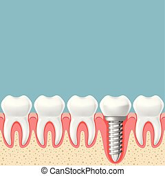 Row of teeth with dental implant - teeth prosthetics scheme, gum cut