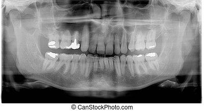rtg (x-ray)  photo of man teeth